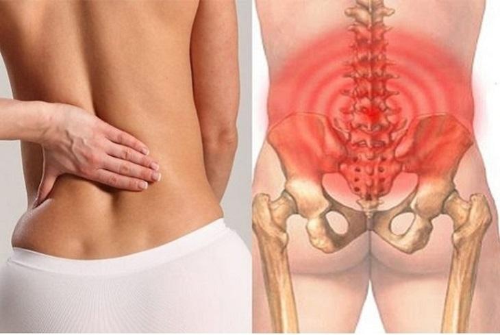 Người bệnh thường hay đau mỏi vùng thắt lưng