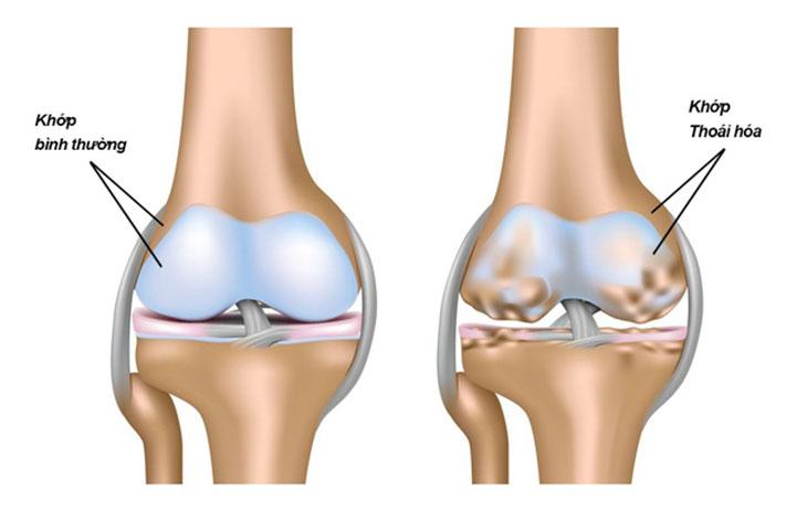 Hình ảnh của khớp xương bình thường và khớp bị thoái hóa