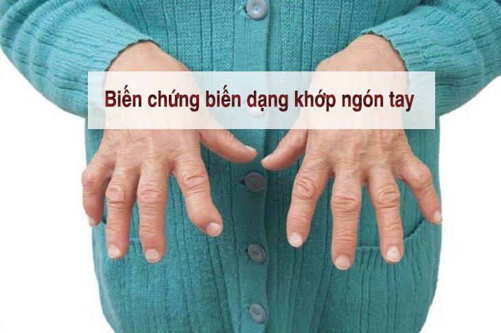 Bệnh kéo dài, không được điều trị có thể khiến khớp bị biến dạng