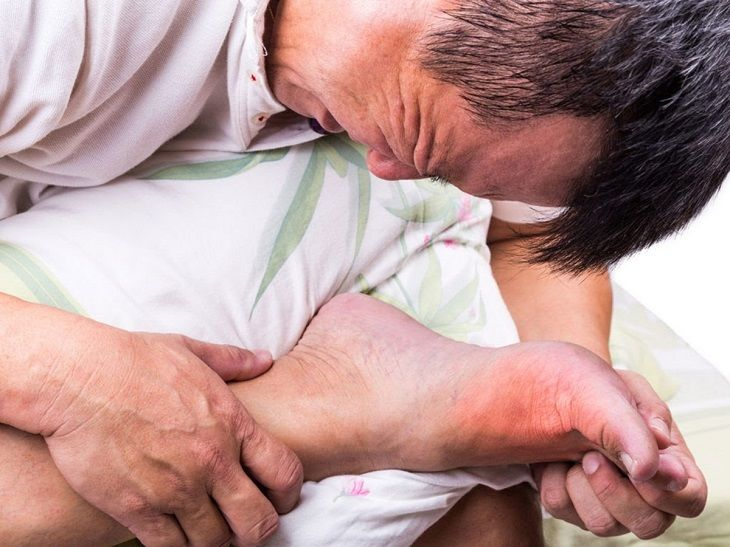 Bệnh Gout là một trong những dạng đau nhức xương khớp, bệnh chủ yếu do chế độ ăn uống