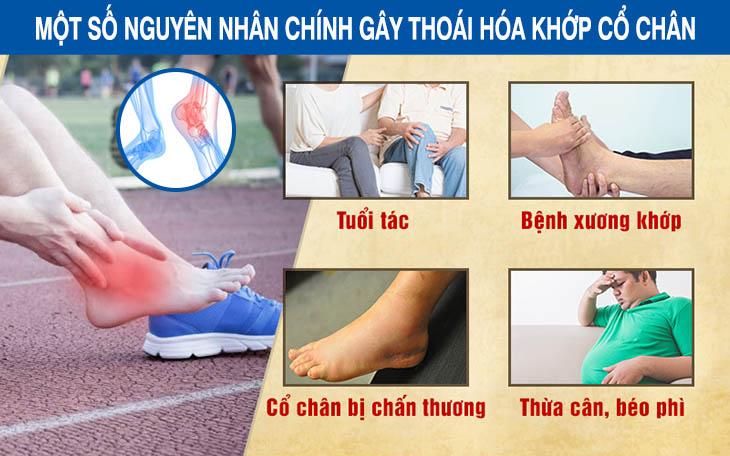 Một số nguyên nhân phổ biến gây thoái hóa khớp chân