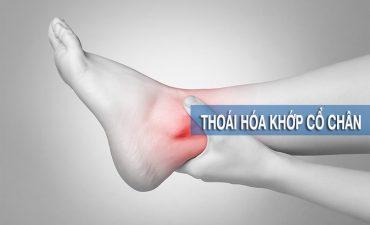 Thoái hóa khớp cổ chân là tình trạng loạn dưỡng của khớp