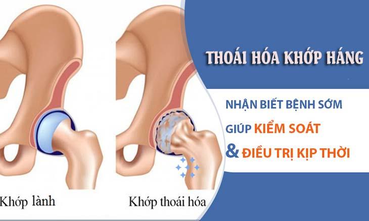 Thoái hóa khớp háng là tình trạng sụn khớp và xương dưới sụn vùng háng bị bào mòn