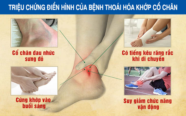 Những triệu chứng điển hình của thoái hóa khớp cổ chân