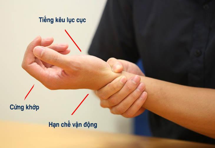 Các triệu chứng điển hình của thoai hoa khop tay