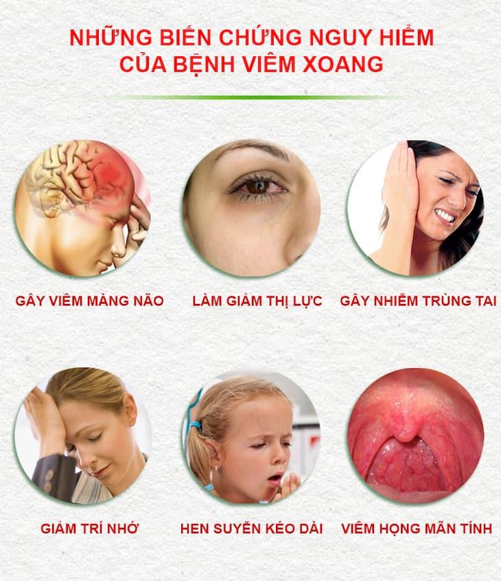Bệnh gây nhiều biến chứng ảnh hưởng đến sức khỏe và cuộc sống người bệnh