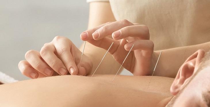 Châm cứu cũng là 1 phương pháp hiệu quả trong đông y chữa thoái hóa đốt sống cổ