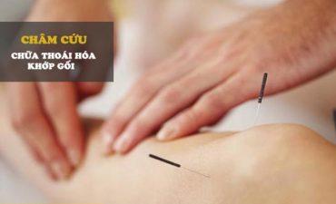 Châm cứu là một phương pháp điều trị của YHCT, được ứng dụng nhiều trong chữa bệnh thoái hóa khớp gối