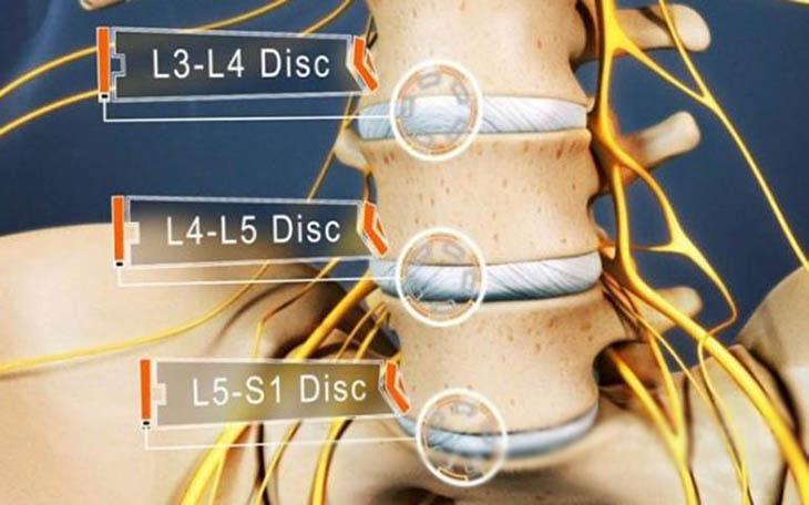 Người bệnh cần được thăm khám, chẩn đoán kỹ càng để có phác đồ điều trị phù hợp