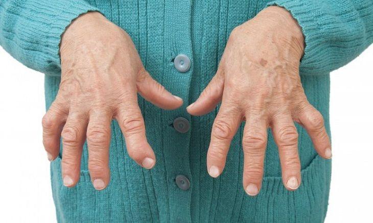 Viêm khớp vảy nến là 1 thể của viêm khớp mãn tính