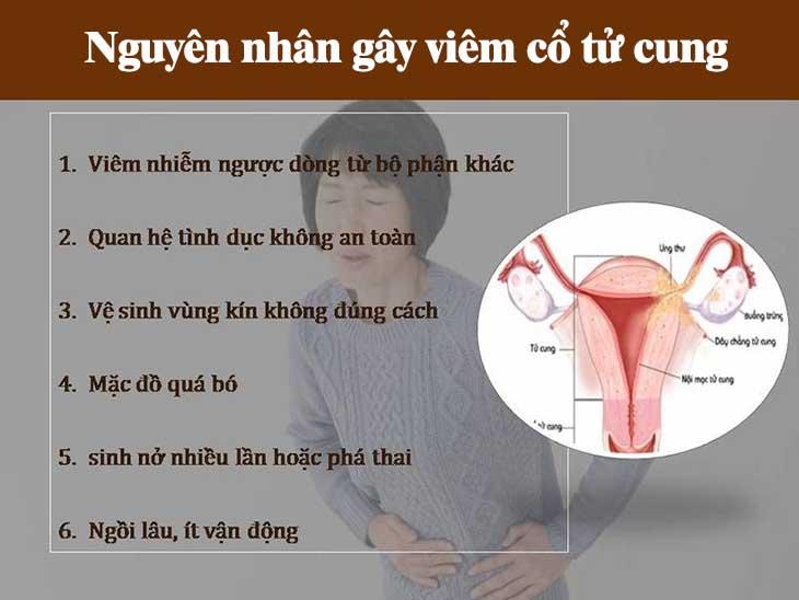 Các nguyên nhân phổ biến gây viêm cổ tử cung