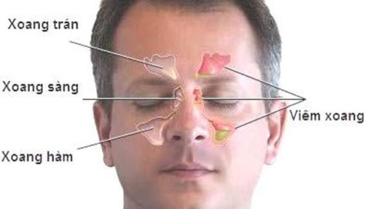 Phân loại bệnh viêm mũi xoang dựa theo vị trí