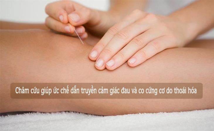 Châm cứu thoái hóa khớp gối có tác dụng ức chế cảm giác đau và co cứng cơ do thoái hóa