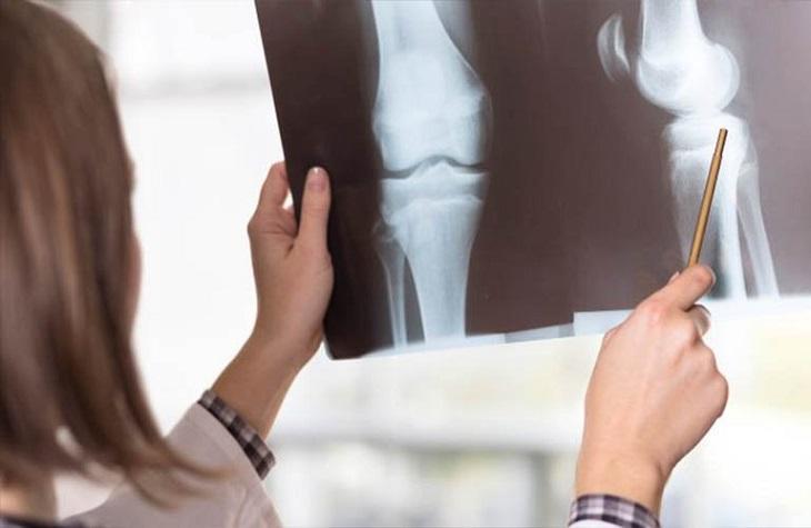 Chụp X - quang giúp chẩn đoán tình trạng thấp khớp