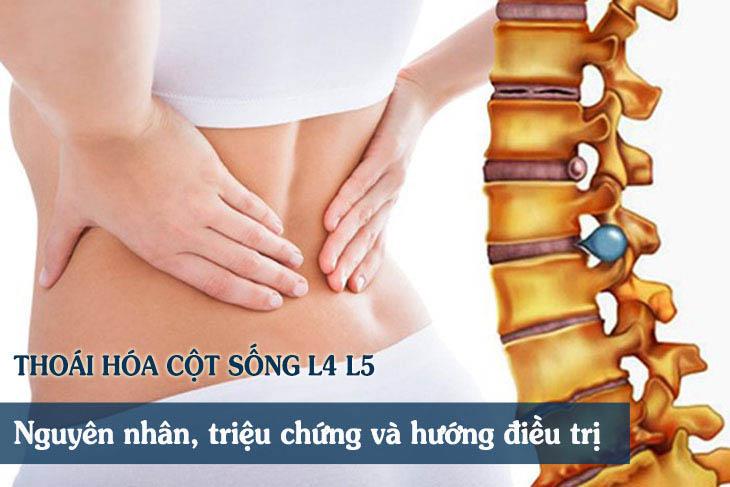 L4, L5 là các đốt sống nằm ở vị trí thấp nhất của thắt lưng