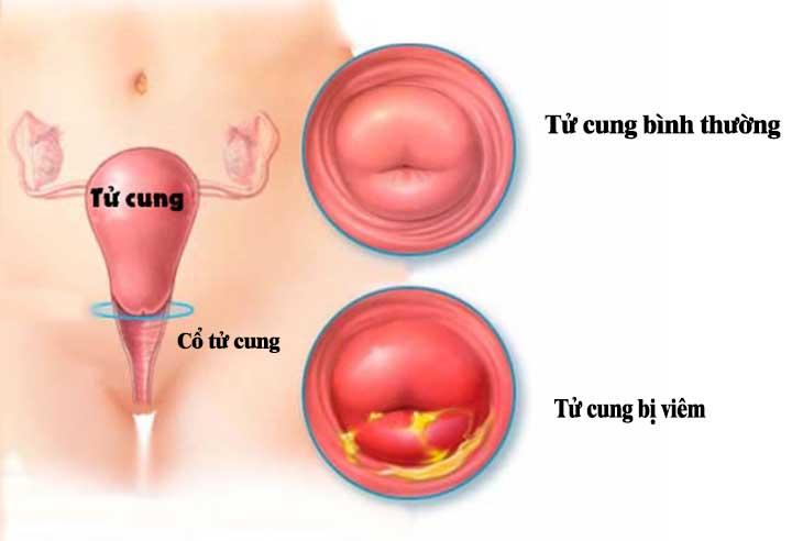 Viêm cổ tử cung là tình trạng các tế bào ở cổ tử cung bị tổn thương, viêm sưng, lở loét