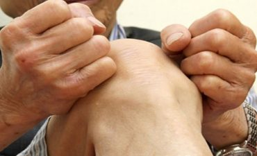 Viêm khớp nhiễm khuẩn là bệnh lý thường gặp ở người cao tuổi