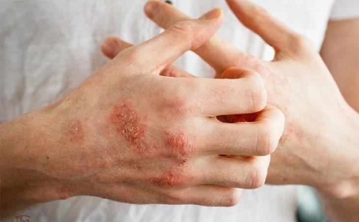 Một số bệnh lý về da cũng có thể là nguyên nhân dẫn đến viêm khớp nhiễm khuẩn