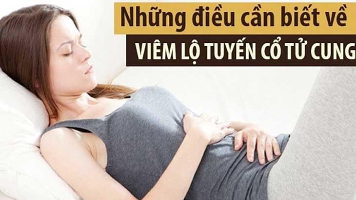 Viêm lộ tuyến cổ tử cung là bệnh lý xảy ra với 50 - 60% phụ nữ trong độ tuổi sinh sản