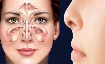 Viêm xoang mũi là bệnh hô hấp thường gặp phổ biến