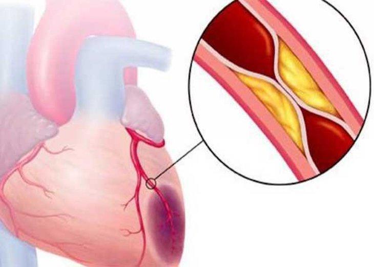 Cảm giác đau tức ngực có thể do bóc tách động mạch vành