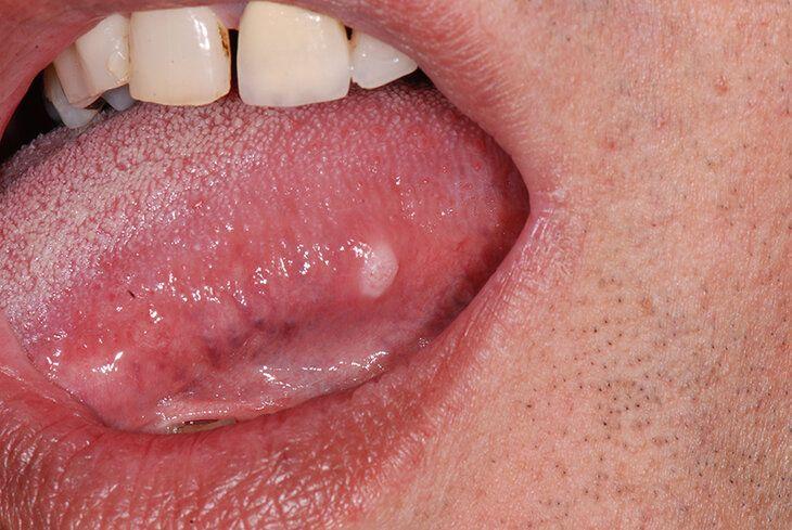 Đại đa số người bệnh gặp tình trạng này đều có nguy cơ mắc ung thư lưỡi giai đoạn đầu