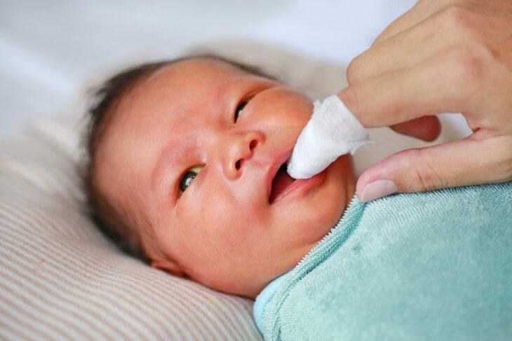 Rơ lưỡi thường xuyên cho trẻ để đảm bảo khuôn miệng luôn sạch sẽ