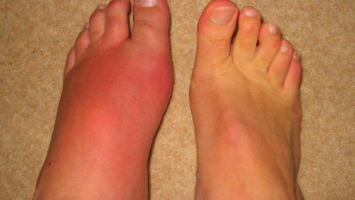 Mu bàn chân bị sưng đau là một biểu hiện rất dễ gặp ở mọi lứa tuổi