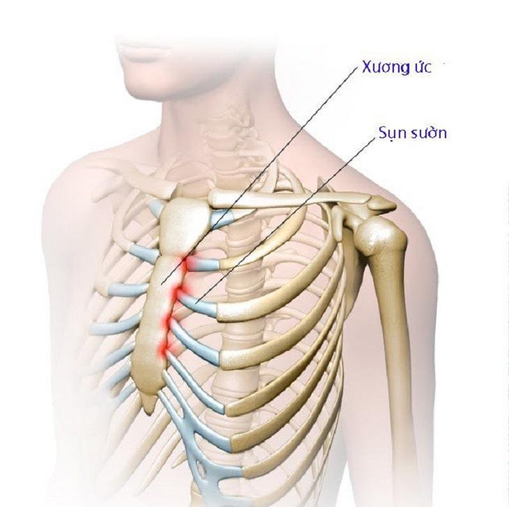 Khoang bụng là khu vực trên cơ thể tác động rất lớn đến vùng xương ức