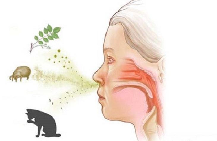 Có nhiều nguyên nhân khác nhau gây viêm họng dị ứng