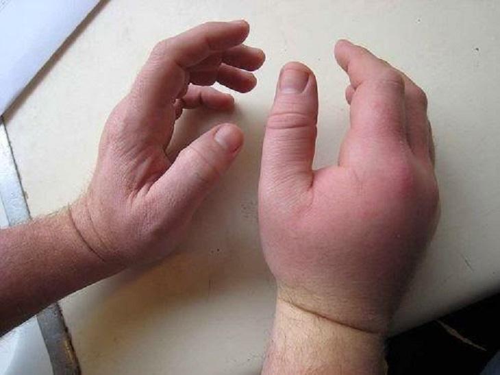 Hội chứng tiền sản giật cũng có thể khiến các mạch máu ở tay bị tắc nghẽn và sưng tấy