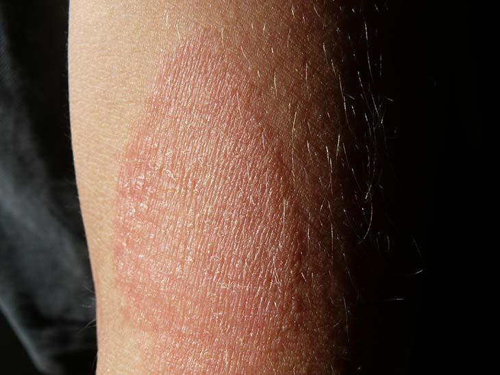 Bị bong da tay là biểu hiện của bệnh chàm và viêm da