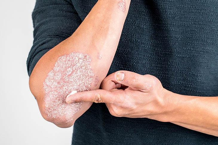 Bong da tay là biểu hiện của bệnh vảy nến
