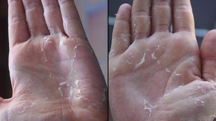 Bị bong da tay là bệnh thường gặp hiện nay