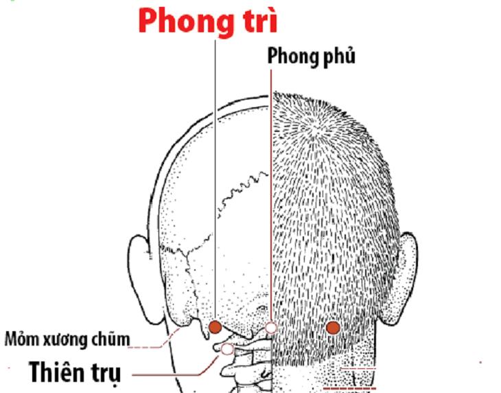 Huyệt Phong trì nằm ở phía hõm sau gáy tại cả hai bên