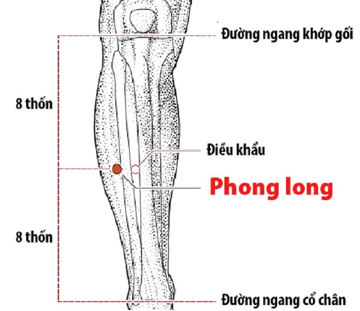 Nên dùng huyệt Phong long khi đau đầu và ho có đờm do viêm họng