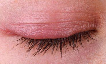 Bệnh ngứa mi mắt ngày càng phổ biến