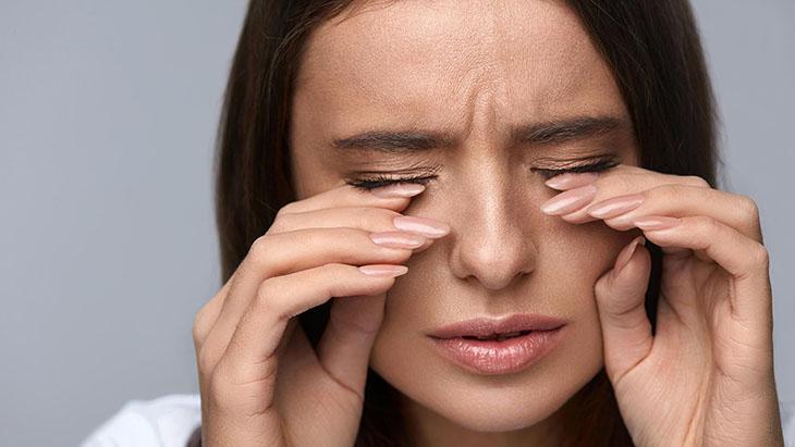 Không nên dụi mắt trong lúc bị viêm hoặc ngứa sẽ làm hiện tượng này nặng thêm