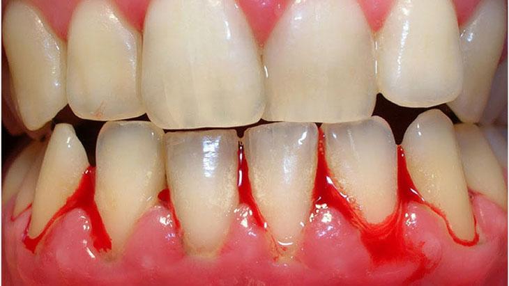 Chảy máu nướu răng cũng có thể làm nước bọt có lẫn máu