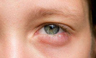 Trẻ bị sưng mí mắt dưới gây ra rất nhiều khó chịu cho bé