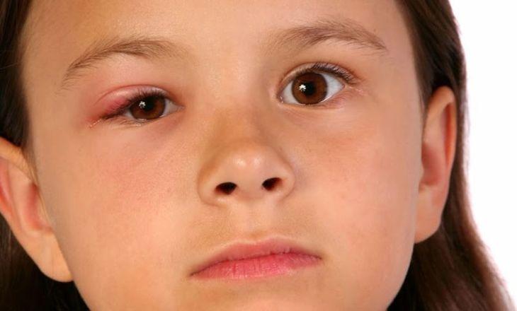 Chắp, lẹo thường gây sưng mí mắt dưới ở trẻ