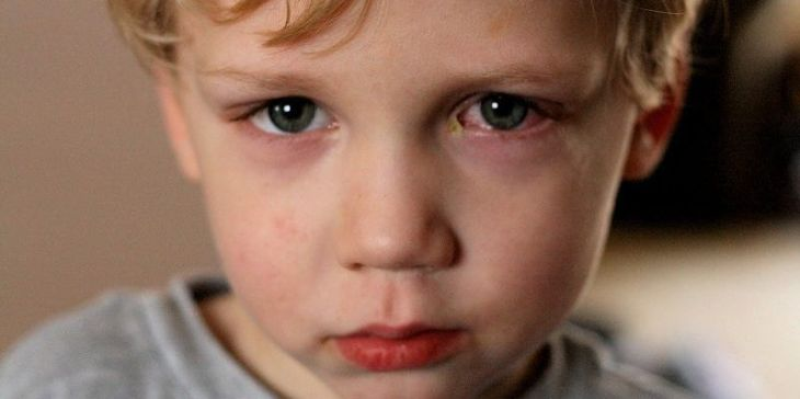 Đau mắt đỏ cũng là bệnh gây ra sưng mí mắt trên ở trẻ