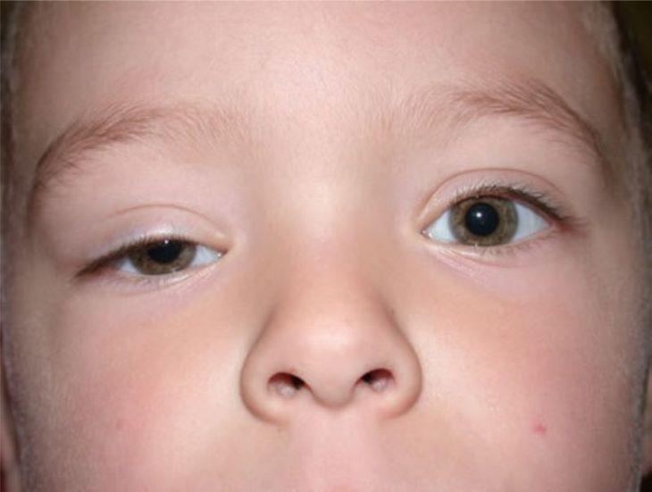 Trẻ bị sưng mí mắt trên là tình trạng đang khiến nhiều cha mẹ phải lo lắng