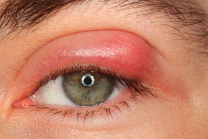 Bệnh viêm bờ mi cũng thường gây ra cho trẻ bị viêm mí mắt trên