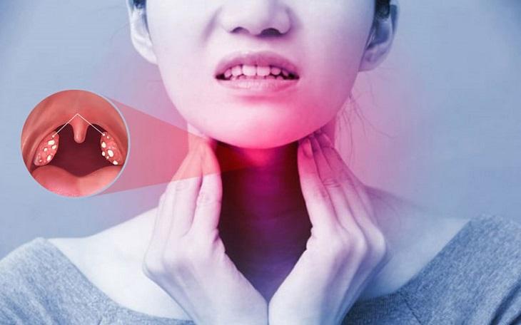 Áp xe thành họng là biến chứng thường gặp của viêm họng mãn tính