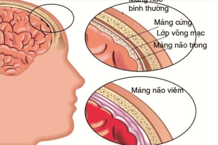 Biến chứng viêm đa xoang có thể gây ảnh hưởng đến não