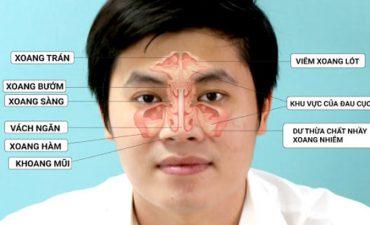 Viêm đa xoang có thể gây ra sự khó chịu cho người bệnh