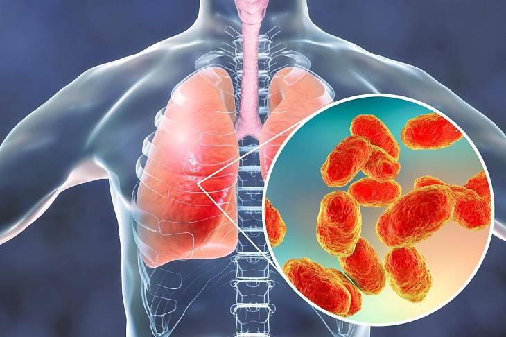 Viêm phế quản là một trong những biến chứng của bệnh viêm phổi