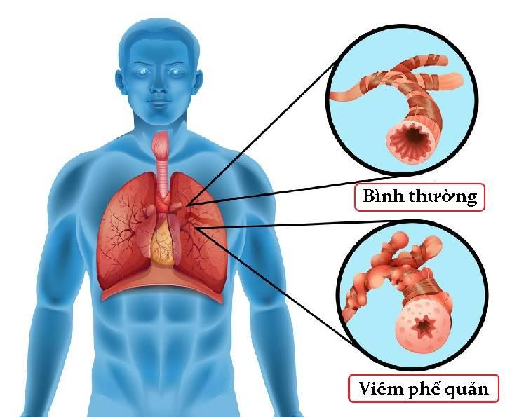 Viêm phế quản là bệnh đường hô hấp có thể gặp ở mọi đối tượng