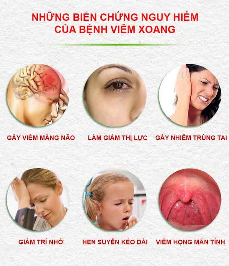 Bệnh nói chung có thể gây ra nhiều biến chứng nguy hiểm cho sức khỏe